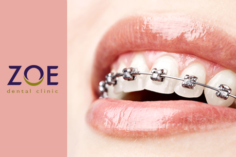 Smile with confidence! Align your teeth with Orthodontic braces and get a dental check-up with teeth cleaning at the Zoe Dental Clinic for AED 999
