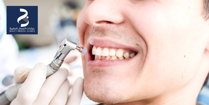 Teeth Cleaning & Whitening Session for two