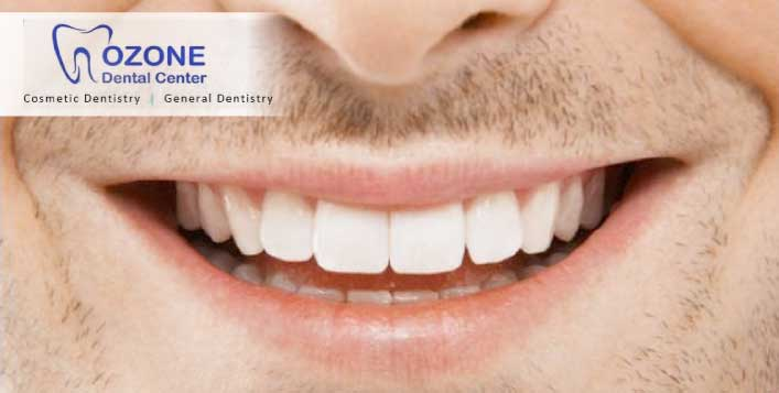 Smile with Teeth Scaling and Polishing @Ozone