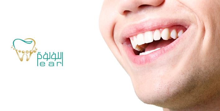 German Laser Gum Pigmentation Session